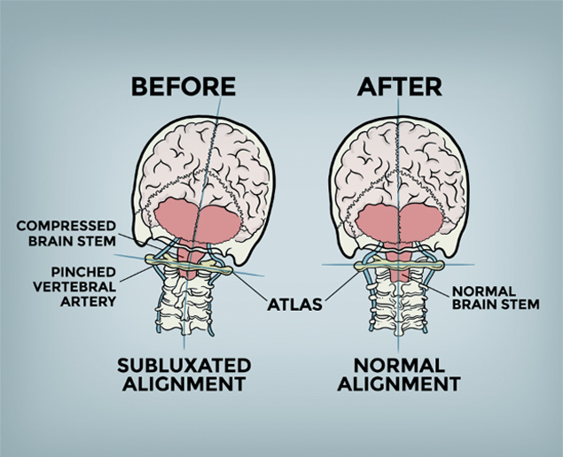 diagram showing the problem with misaligned head and spine